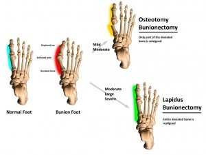 Bunion Procedures Dr Blitz