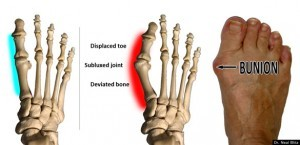 Dr Neal Blitz Huff Po Bunion Blog Pic 1 Final