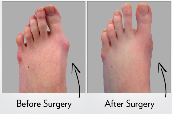 Lapidus Bunionectomy Surgery - Lapidus Procedure and Recovery