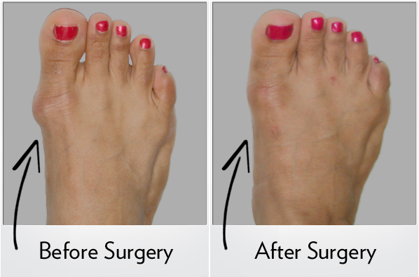 Before and After Photo of Bunion Surgery