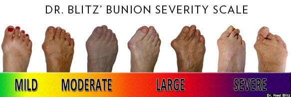 severity scale