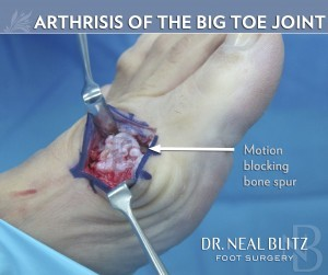 Big Toe Joint Arthritis Dr Blitz