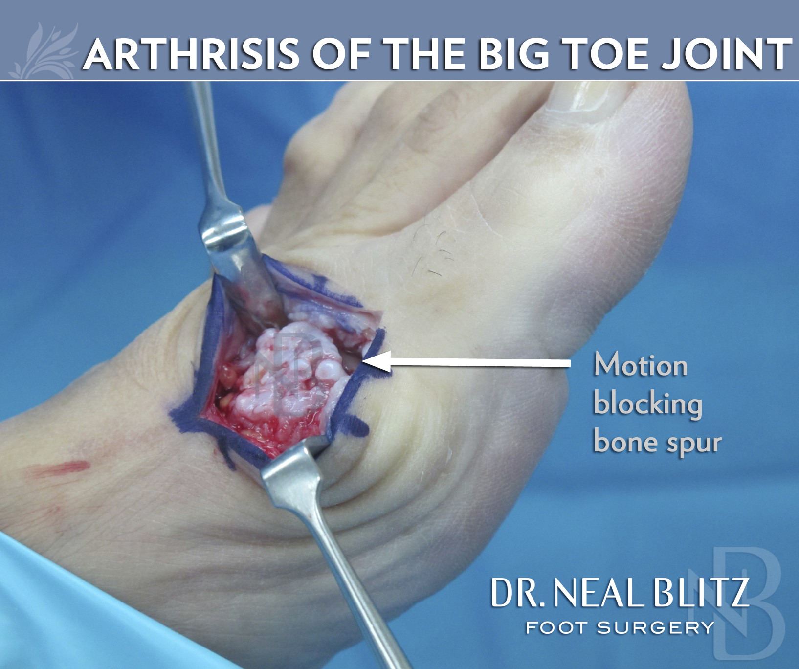 how to live with arthritis in your feet