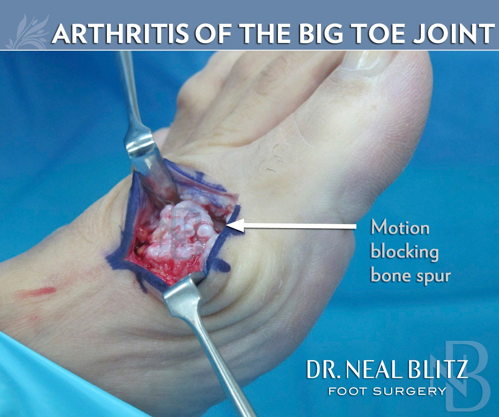 Big Toe Arthritis Surgery – Learn about Symptoms & Treatment