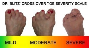 Cross Over Toe Severity Chart