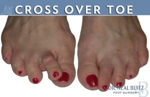 Cross Over Toes - Foot Doctor