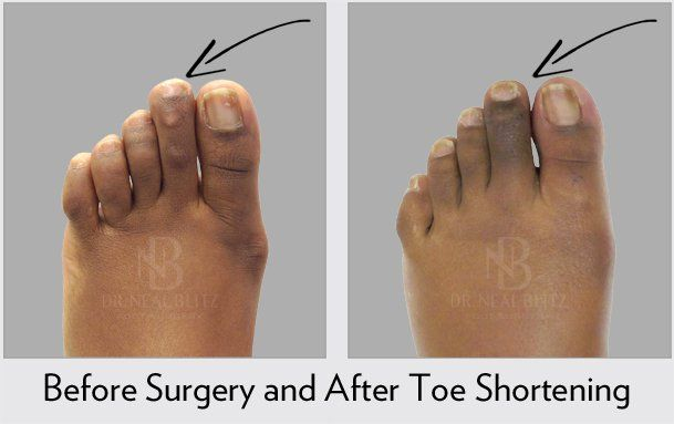 Toe Shortening - Before & After