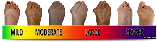 Bunion Surgery Scale