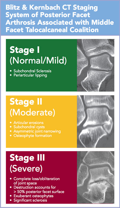 Tarsal Coalition Arthritis 3 Stages