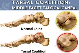 Tarsal Coalition: Middle Facet Talocalcaneal