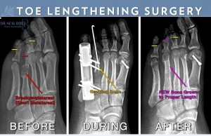 Toe Lengthening Surgery