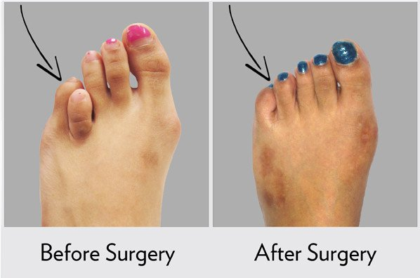 Before and After Toe Lengthening