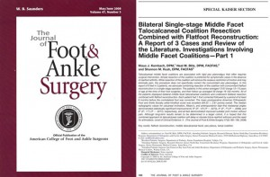 Bilateral Single-Stage Middle Facet Talocalcaneal Coalition Resection