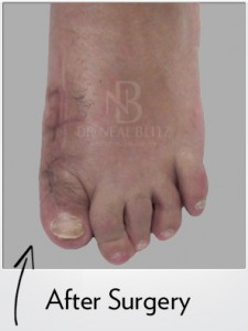 Hallux Varus Case After