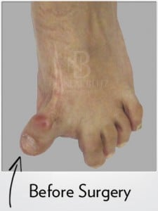 Hallux Varus Case Before