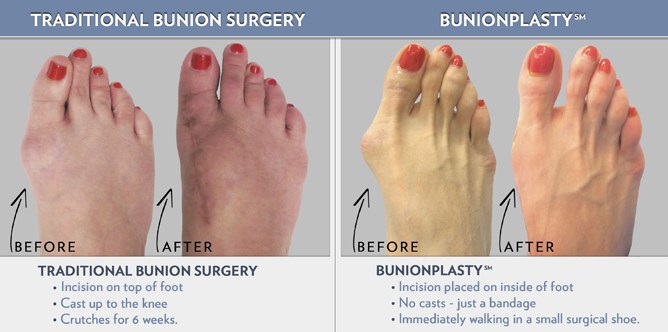 Traditional Bunion Surgery vs Bunionplasty