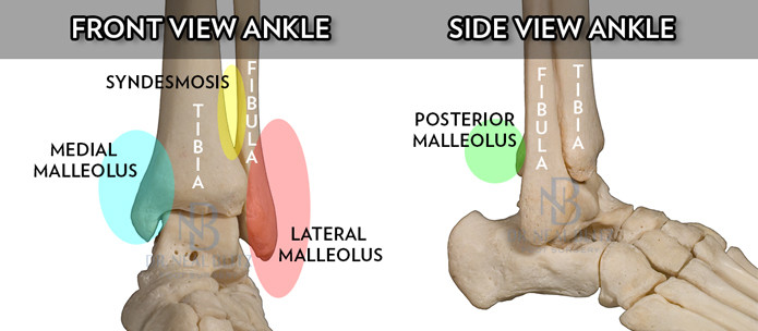 Ankle Fracture Bone Models Dr. Blitz-SMALL
