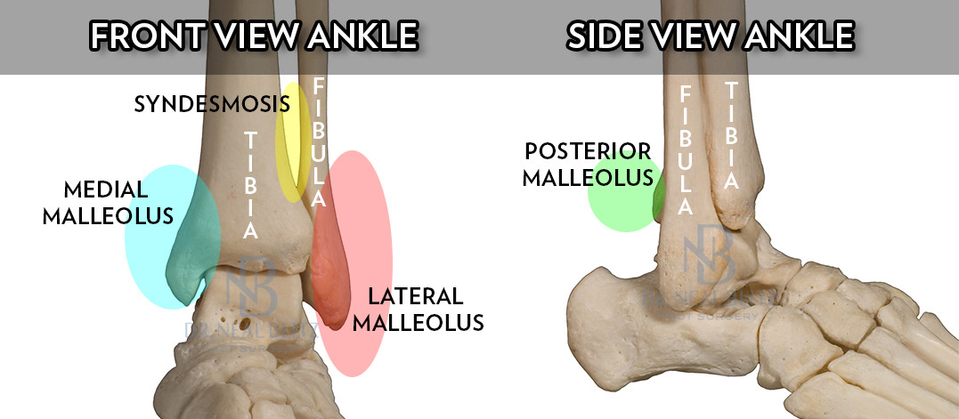 ankle fracture surgery - dr. neal blitz | new york nyc, Human Body