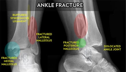 Ankle Fracture Dr Blitz-SMALL
