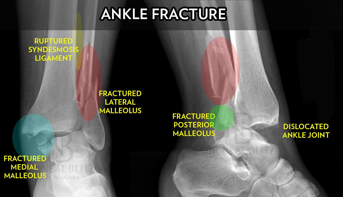 Ankle Fracture Surgery - Dr  Neal Blitz | New York NYC