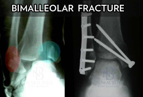 causes and treatment of bimalleolar fractures Bimalleolar fractures can cause severe pain, swelling, and bruising in the injured ankle they also can be tender to the touch and make walking or putting any weight on the affected foot very difficult and painful bimalleolar fractures make the ankle unstable and typically require surgery to implant metal.