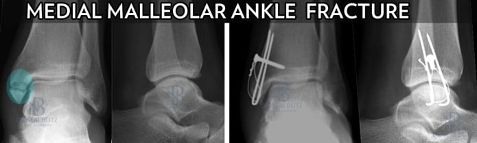 Medial Malleolar Ankle Fracture Surgery-SMALL