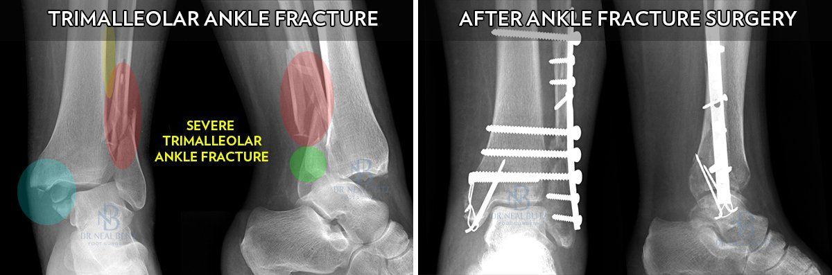 Ankle Fracture Surgery Dr Neal Blitz New York Nyc