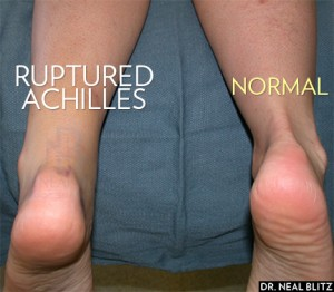 Achilles rupture is obvious when compared to the other foot