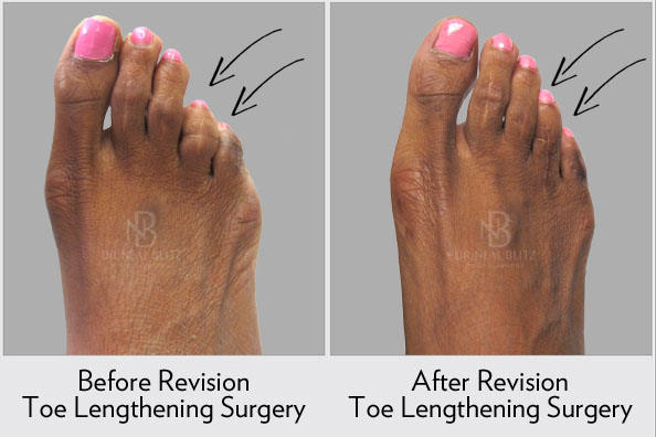 B&A-Toe-Lengthening-web