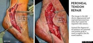 Peroneal Tendon Repair Surgery New York