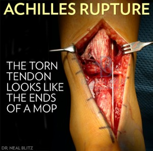 Intra-operative picture of achilles tendon rupture