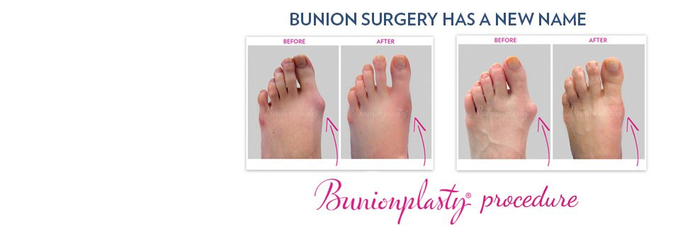 Toe Lengthening (Brachymetatarsia) Surgery | Treatments